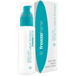 Freezeframe Stem Cell Stretch Mark Eraser 80mL